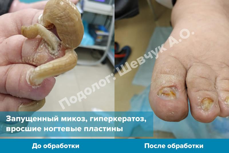 Лечение ногтя при гиперкератозе