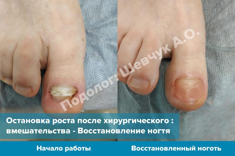 Восстановление ногтя - до и после